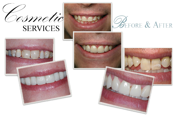 Basinger Family Dentistry | Cosmetic Dentistry Shreveport